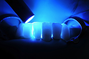 dental-fillings-img-1
