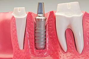 dental-implant-img-1