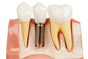 dental-implant-img-2