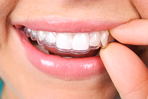 tooth-whitening-img-1