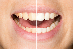 tooth-whitening-img-3