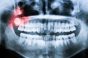 wisdom-teeth-img-1